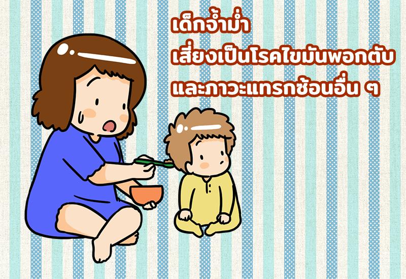 เด็กจ้ำม่ำ เสี่ยงเป็นโรคไขมันพอกตับ และภาวะแทรกซ้อนอื่น ๆ