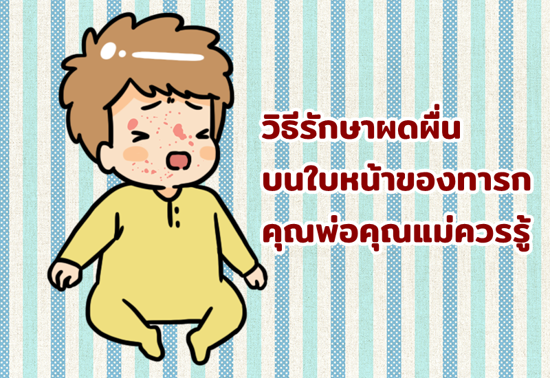 วิธีรักษาผดผื่นบนใบหน้าของทารก คุณพ่อคุณแม่ควรรู้